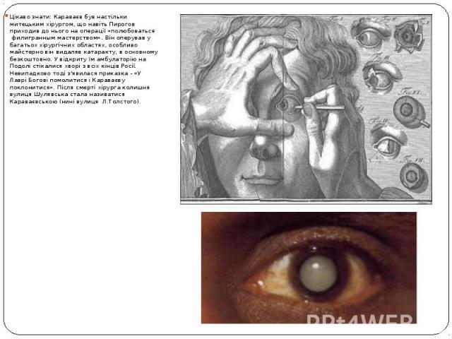 Цікаво знати: Караваєв був настільки митецьким хірургом, що навіть Пирогов приходив до нього на операції «полюбоваться филигранным мастерством». Він оперував у багатьох хірургічних областях, особливо майстерно він видаляв катаракту, в основном…