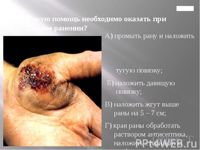 Главная 8. Какую помощь необходимо оказать при данном ранении?