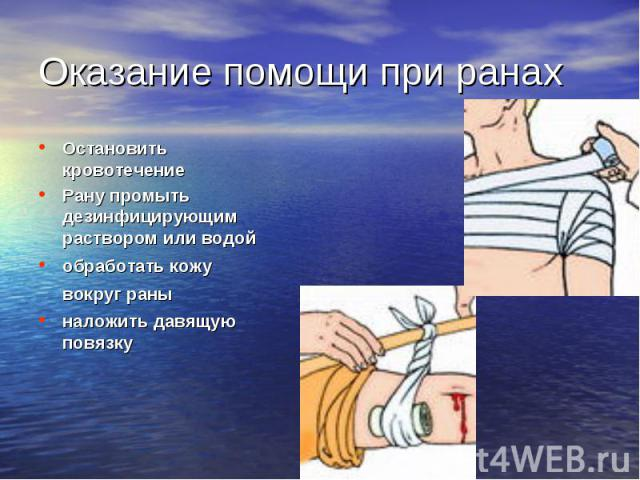 Остановить кровотечение Остановить кровотечение Рану промыть дезинфицирующим раствором или водой обработать кожу вокруг раны наложить давящую повязку