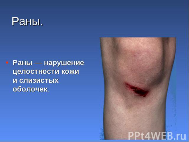Раны — нарушение целостности кожи и слизистых оболочек. Раны — нарушение целостности кожи и слизистых оболочек.
