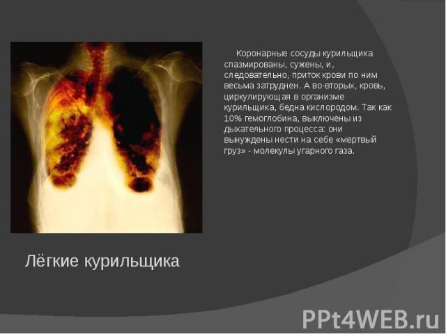 Коронарные сосуды курильщика спазмированы, сужены, и, следовательно, приток крови по ним весьма затруднен. А во-вторых, кровь, циркулирующая в организме курильщика, бедна кислородом. Так как 10% гемоглобина, выключены из дыхательного процесса: они в…
