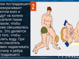 Затем пострадавшего переворачивают животом вниз и кладут на колено спасателя так