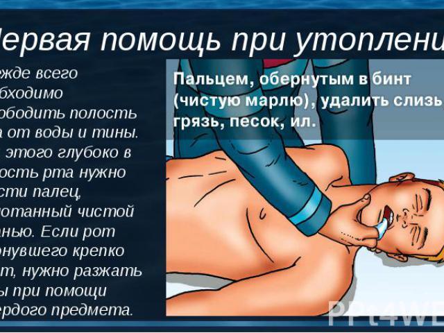 Прежде всего необходимо освободить полость рта от воды и тины. Для этого глубоко в полость рта нужно ввести палец, обмотанный чистой тканью. Если рот утонувшего крепко сжат, нужно разжать зубы при помощи твердого предмета. Прежде всего необходимо ос…