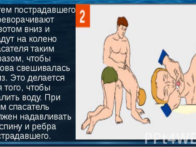 Затем пострадавшего переворачивают животом вниз и кладут на колено спасателя таким образом, чтобы голова свешивалась вниз. Это делается для того, чтобы удалить воду. При этом спасатель должен надавливать на спину и ребра пострадавшего. Затем пострад…
