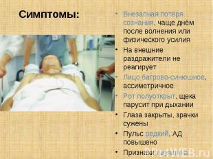 Внезапная потеря сознания, чаще днём после волнения или физического усилия Внеза
