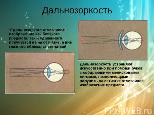 Дальнозоркость У дальнозоркого отчетливое изображение как близкого предмета, так