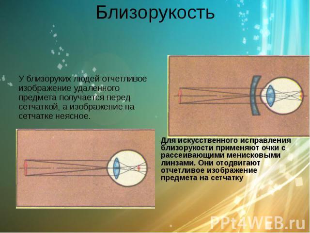 Близорукость У близоруких людей отчетливое изображение удаленного предмета получается перед сетчаткой, а изображение на сетчатке неясное.