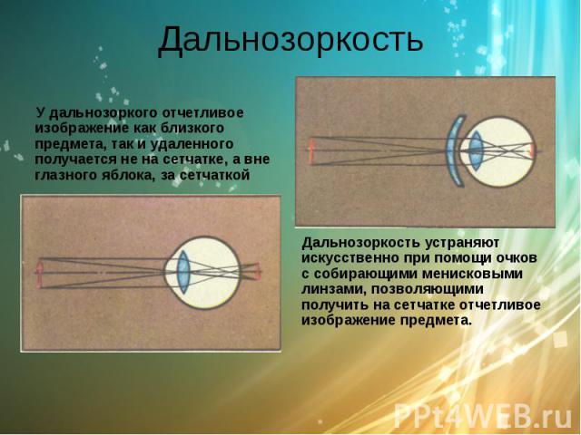 Дальнозоркость У дальнозоркого отчетливое изображение как близкого предмета, так и удаленного получается не на сетчатке, а вне глазного яблока, за сетчаткой