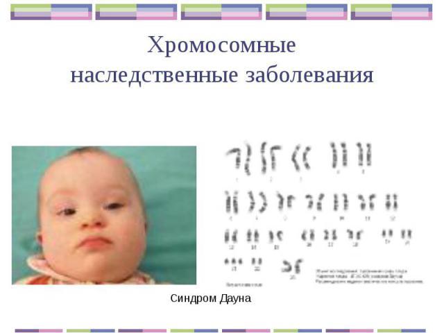 Хромосомные наследственные заболевания