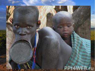 К промежуточной расе некоторые специалисты относят эфиопов. Они отличаются более