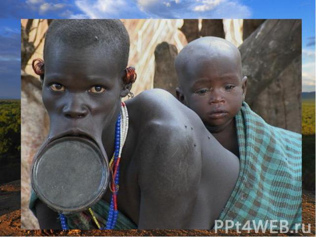 К промежуточной расе некоторые специалисты относят эфиопов. Они отличаются более светлой, но с красноватым оттенком окраской кожи. По своему внешнему виду эфиопы ближе к южной ветви европеоидной расы. Малагасийцы (жители Мадагаскара) произошли от см…