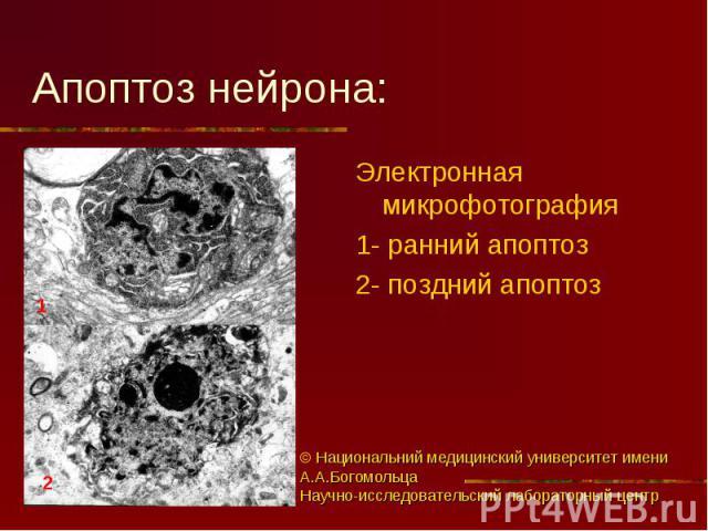 Электронная микрофотография Электронная микрофотография 1- ранний апоптоз 2- поздний апоптоз
