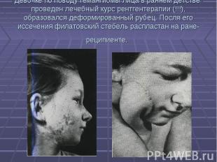 Девочке по поводу гемангиомы лица в раннем детстве проведен лечебный курс рентге