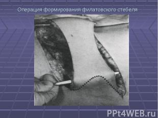 Операция формирования филатовского стебеля