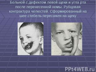 Больной с дефектом левой щеки и угла рта после перенесенной номы. Рубцовая контр