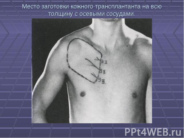 Место заготовки кожного трансплантанта на всю толщину с осевыми сосудами