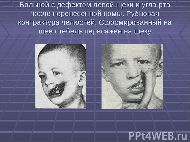 Больной с дефектом левой щеки и угла рта после перенесенной номы. Рубцовая контрактура челюстей. Сформированный на шее стебель пересажен на щеку