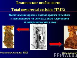 Технические особенности Total mesorectal excision (TME
