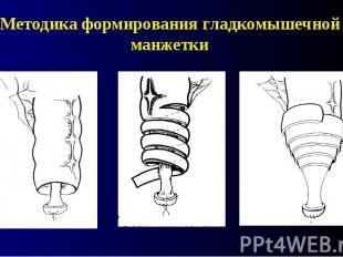 Методика формирования гладкомышечной манжетки