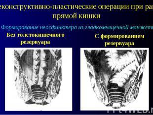 Реконструктивно-пластические операции при раке прямой кишки