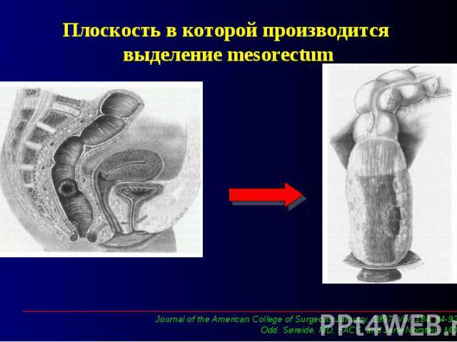 Плоскость в которой производится выделение mesorectum
