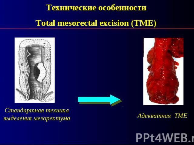 Технические особенности Total mesorectal excision (TME)