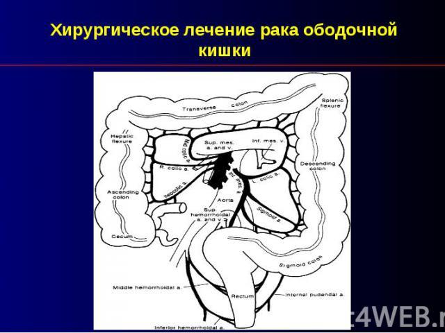 Хирургическое лечение рака ободочной кишки