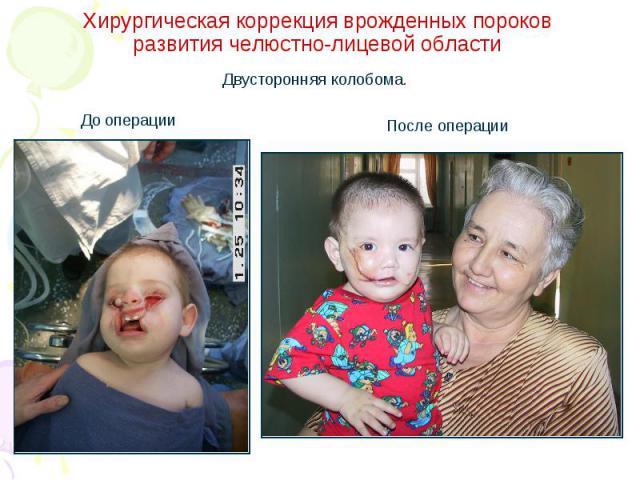 Хирургическая коррекция врожденных пороков развития челюстно-лицевой области