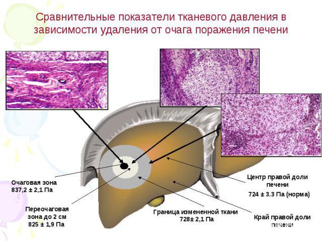 Сравнительные показатели тканевого давления в зависимости удаления от очага поражения печени