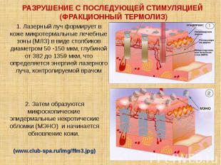 При хроно- и фотостарении в коже накапливаются флуоресцирующие пигменты старения