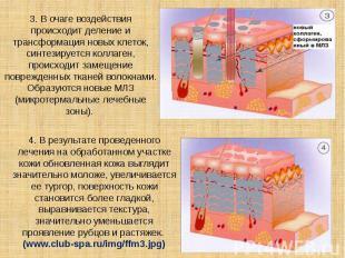 3. В очаге воздействия происходит деление и трансформация новых клеток, синтезир