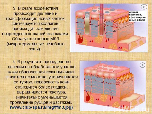 3. В очаге воздействия происходит деление и трансформация новых клеток, синтезируется коллаген, происходит замещение поврежденных тканей волокнами. Образуются новые МЛЗ (микротермальные лечебные зоны).