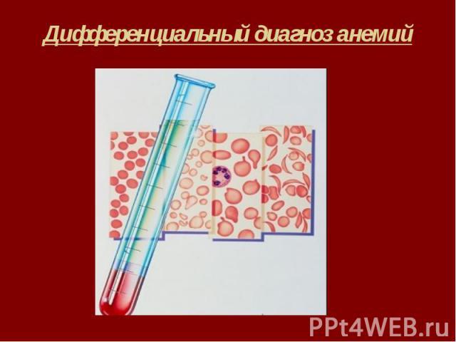 Дифференциальный диагноз анемий