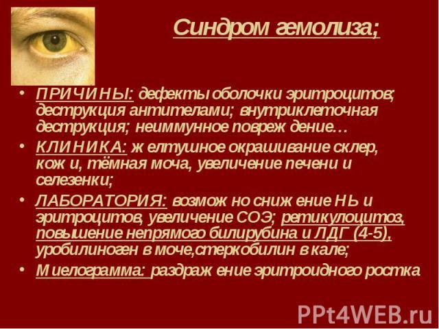 Синдром гемолиза; ПРИЧИНЫ: дефекты оболочки эритроцитов; деструкция антителами; внутриклеточная деструкция; неиммунное повреждение… КЛИНИКА: желтушное окрашивание склер, кожи, тёмная моча, увеличение печени и селезенки; ЛАБОРАТОРИЯ: возможно снижени…
