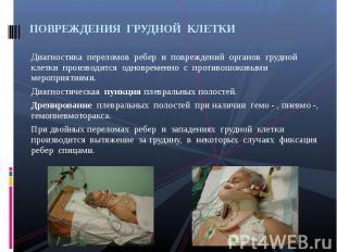 Диагностика переломов ребер и повреждений органов грудной клетки производится од