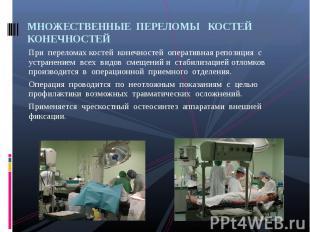 При переломах костей конечностей оперативная репозиция с устранением всех видов