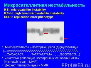Микросателлитная нестабильность MSI: microsatellite instability MSI-H: high leve