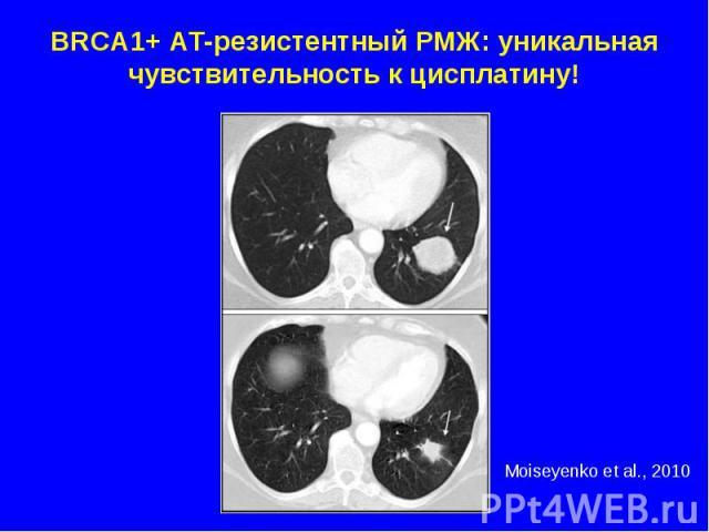 BRCA1+ АТ-резистентный РМЖ: уникальная чувствительность к цисплатину!
