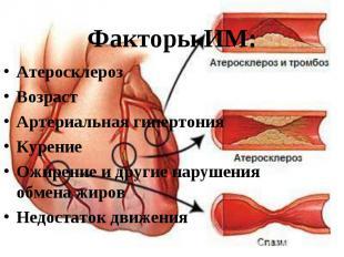 Атеросклероз Атеросклероз Возраст Артериальная гипертония Курение Ожирение и дру