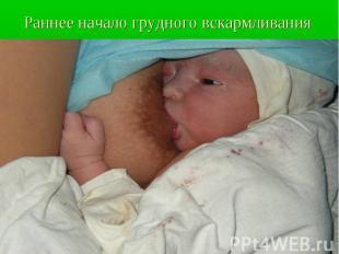 Раннее начало грудного вскармливания