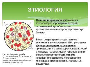 ЭТИОЛОГИЯ Основной причиной ИМ является атеросклероз коронарных артерий, осложне