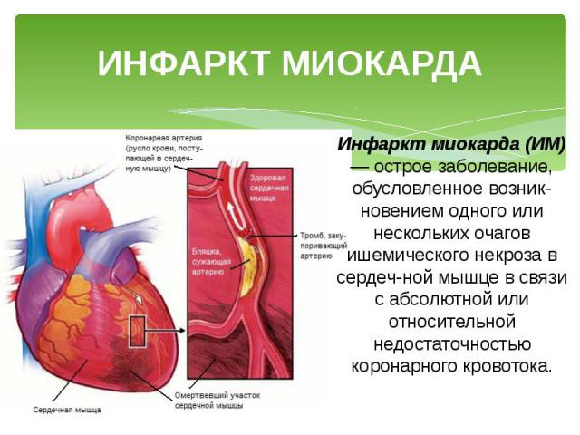 ИНФАРКТ МИОКАРДА Инфаркт миокарда (ИМ) — острое заболевание, обусловленное возникновением одного или нескольких очагов ишемического некроза в сердечной мышце в связи с абсолютной или относительной недостаточностью коронарного кровотока.