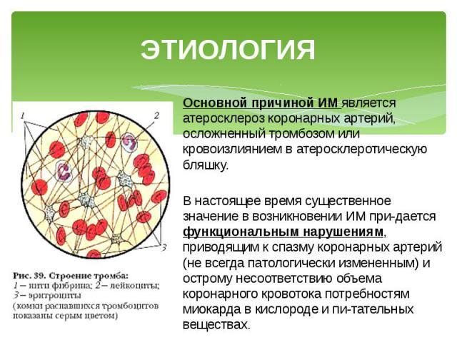 ЭТИОЛОГИЯ Основной причиной ИМ является атеросклероз коронарных артерий, осложненный тромбозом или кровоизлиянием в атеросклеротическую бляшку. В настоящее время существенное значение в возникновении ИМ придается функциональным нарушениям, прив…