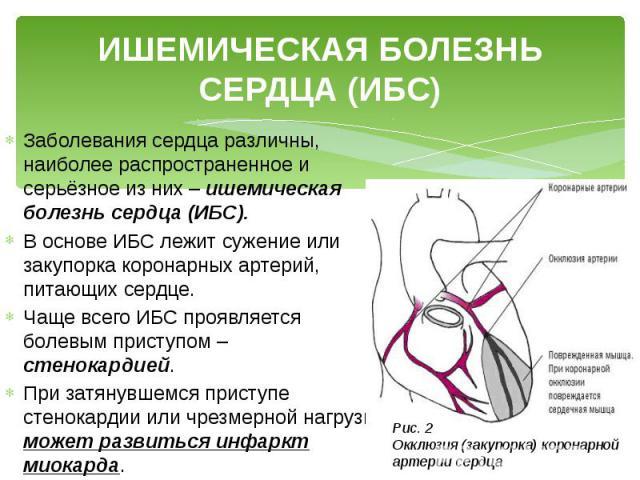 ИШЕМИЧЕСКАЯ БОЛЕЗНЬ СЕРДЦА (ИБС) Заболевания сердца различны, наиболее распространенное и серьёзное из них – ишемическая болезнь сердца (ИБС). В основе ИБС лежит сужение или закупорка коронарных артерий, питающих сердце. Чаще всего ИБС проявляется б…