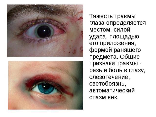 Тяжесть травмы глаза определяется местом, силой удара, площадью его приложения, формой ранящего предмета. Общие признаки травмы - резь и боль в глазу, слезотечение, светобоязнь, автоматический спазм век. Тяжесть травмы глаза определяется местом, сил…