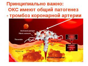Принципиально важно: общий патогенетический механизм - тромбоз коронарной артери