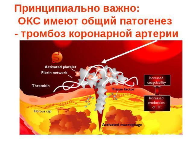 Принципиально важно: общий патогенетический механизм - тромбоз коронарной артерии