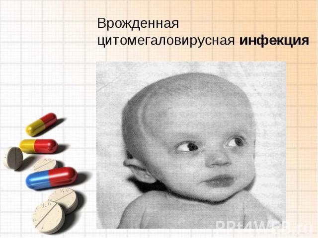 Врожденная цитомегаловирусная инфекция