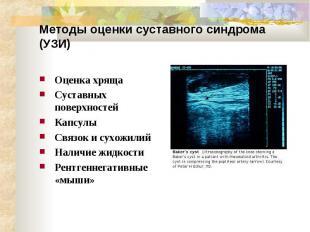 Методы оценки суставного синдрома (УЗИ) Оценка хряща Суставных поверхностей Капс