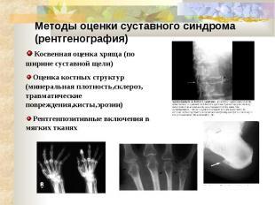 Методы оценки суставного синдрома (рентгенография)